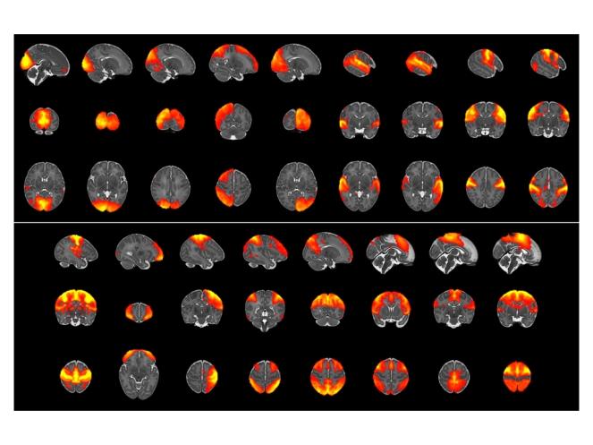 fMRI.001
